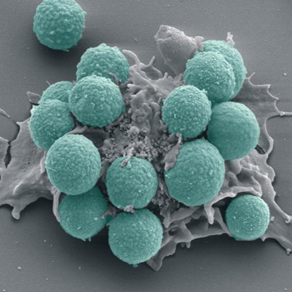 leucocito-devorando-fungos-600x600